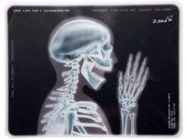 Коврик для мыши с рентгеновским снимком скелета купить